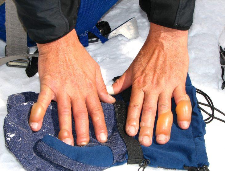 Средства от обморожения суставов боль крестец и верхний суставной отросток