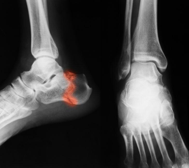 Перелом пяточной кости когда можно начинать наступать