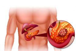 Признаки рака поджелудочной железы
