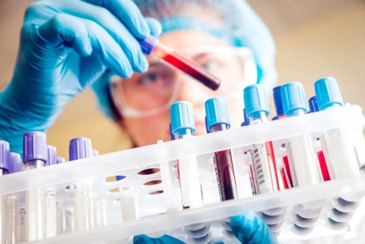 Дерматомиозит: причины, симптомы и проявления, диагностика, лечение