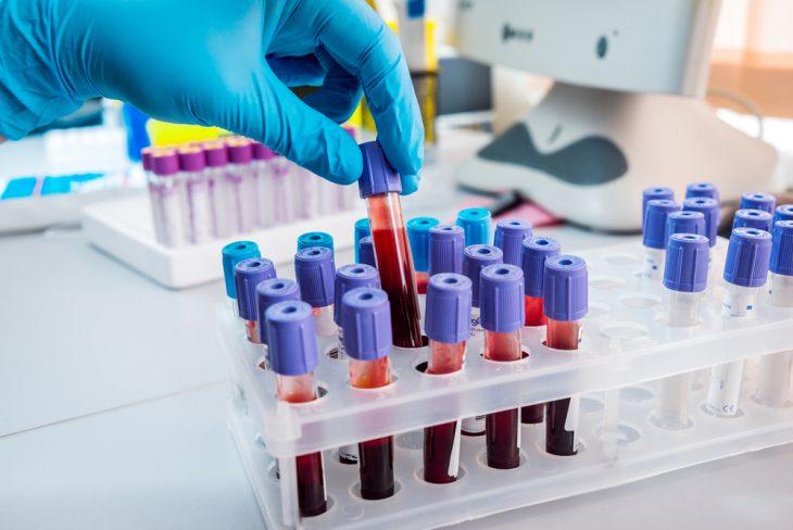 Анализ онкомаркеры значение нормы