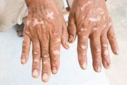 Склеродермия: симптомы, лечение