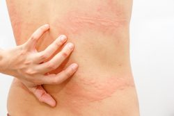Топ-10 самых необычных аллергенов