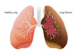 Первые признаки рака легких и их профилактика