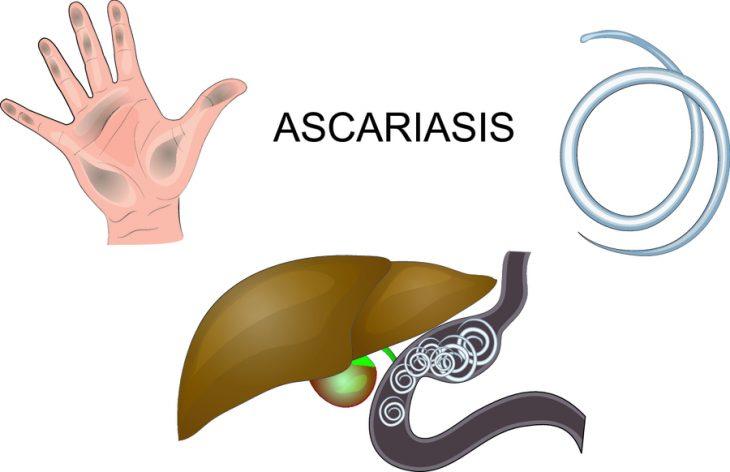 Обтурационная кишечная непроходимость: причины, симптомы, принципы лечения