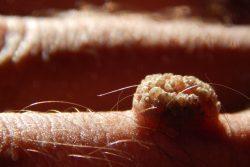 Кожный рог: симптомы и лечение