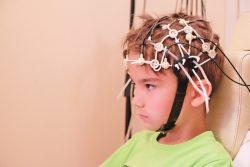 Электроэнцефалография головного мозга: показания и противопоказания, методика проведения