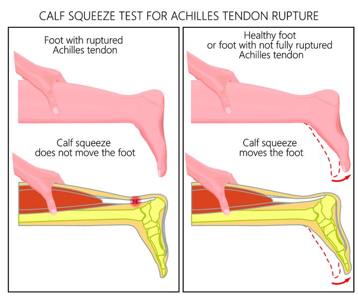 разрыв ахиллова сухожилия,ортопедия и травматология