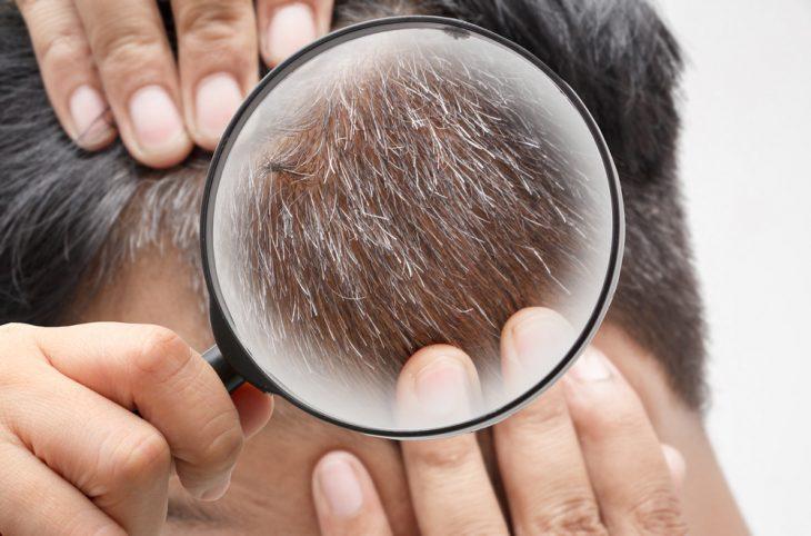 Проблемные волосы: причины появления и методы устранения проблем