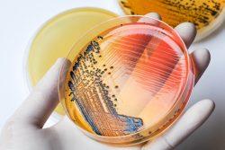Сальмонеллез: признаки, формы болезни и лечение