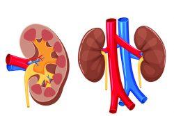 Гидрокаликоз почек: причины, симптомы, лечение