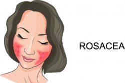 Розацеа на лице: как лечить розовые угри?