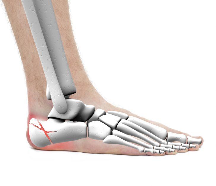 Перелом пяточной кости со смещением и без него: симптомы, лечение ...