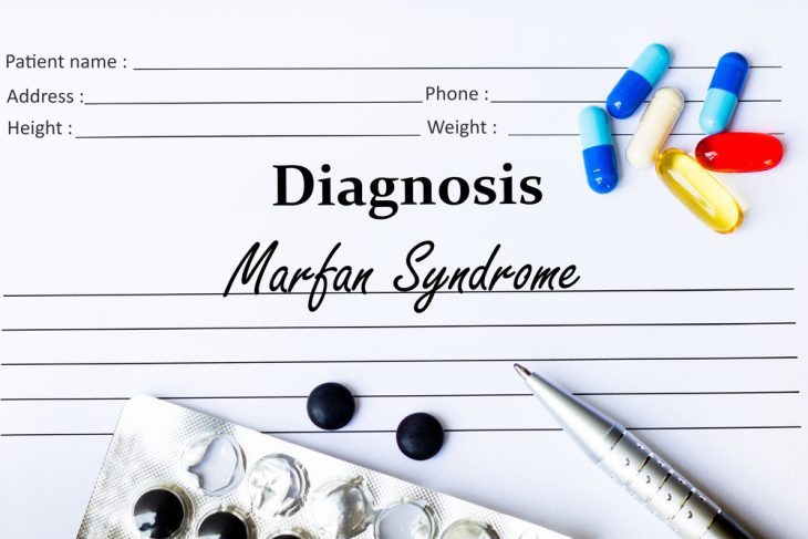 Синдром Марфана признаки что это за болезнь лечение и методы диагностики тип наследования