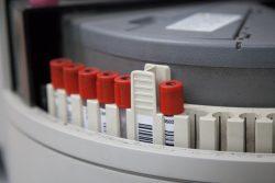 Иммунологическое исследование (иммунограмма): что показывает