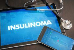Инсулинома: симптомы, лечение