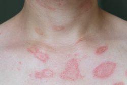 Многоформная экссудативная эритема: причины, лечение