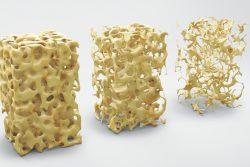 Остеопороз: симптомы и лечение