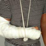 Переломы, виды переломов, первая помощь