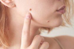 Родинки на теле и лице: причины появления, удаление