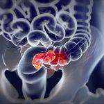 Признаки рака прямой кишки. Симптоматика, диагностика и профилактика