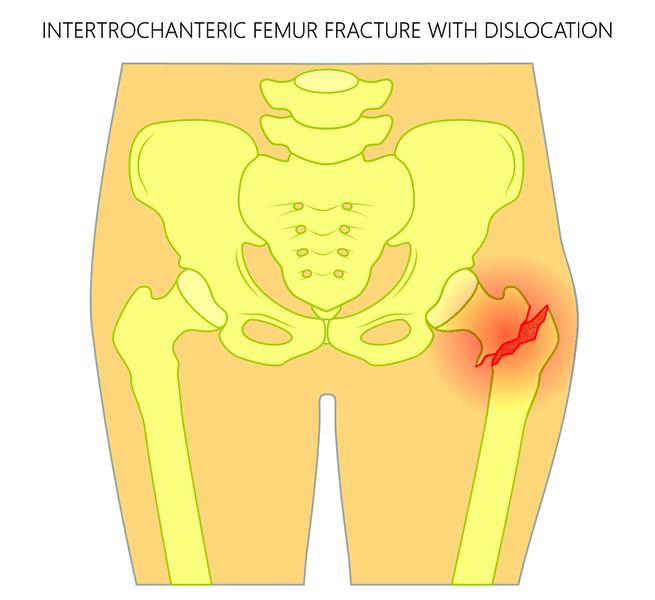 лечение травм коленного сустава народными средствами