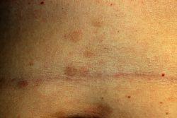 Красный плоский лишай: причины возникновения, методы лечения