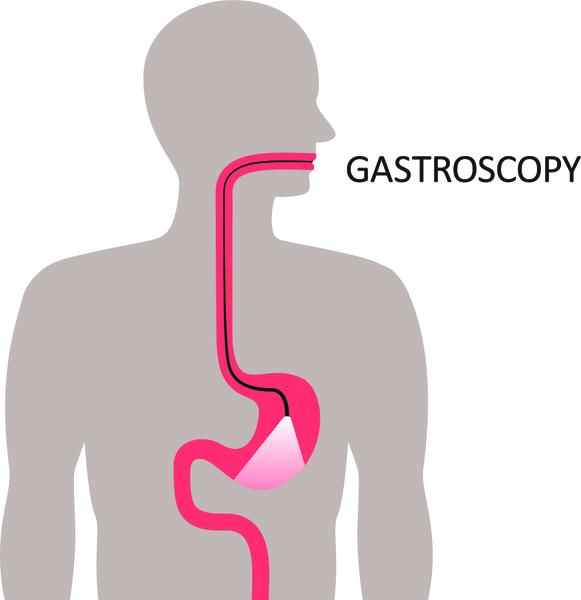Симптомы язвы желудка и двенадцатиперстной кишки