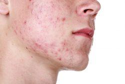 7 основных ошибок при лечении акне у подростков и взрослых