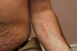 Пигментная крапивница (мастоцитоз): причины появления, симптомы и лечение
