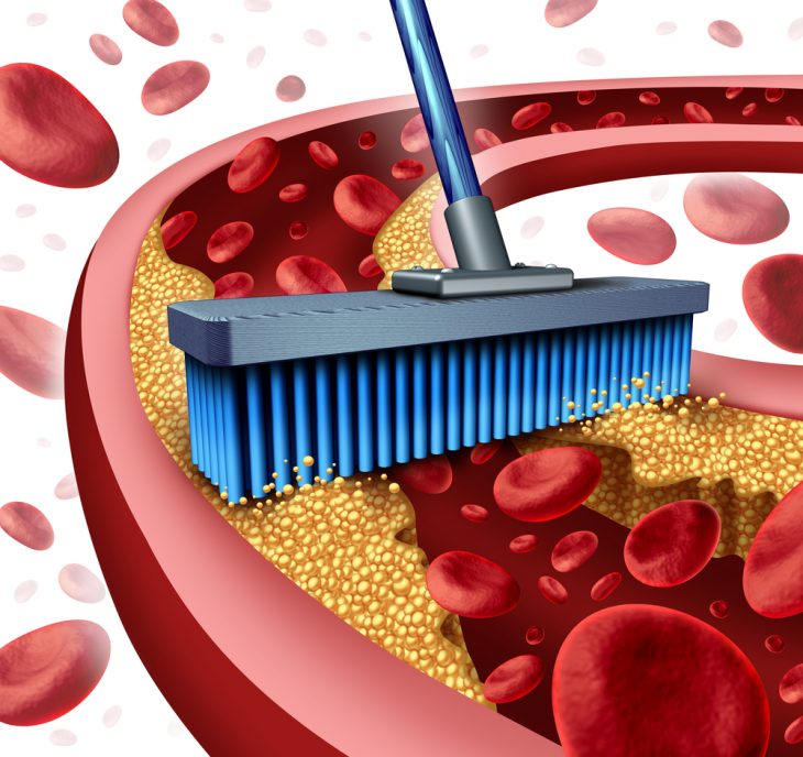 Препараты для лечения атеросклероза — обзор средств