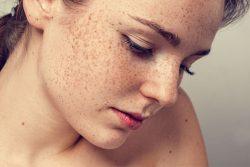 Темные пятна на коже: причины появления