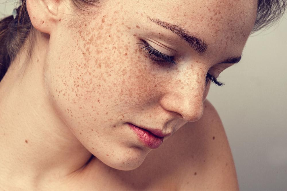 Коричневые пятна на коже (теле)