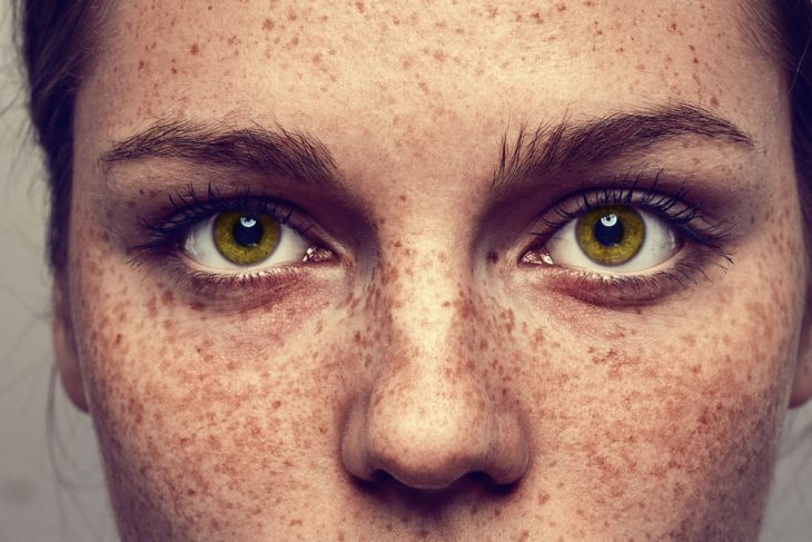 Пигментные пятна на лице - причины и лечение косметическими средствами и народными рецептами