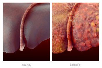 Цирроз печени: признаки, симптомы и лечение