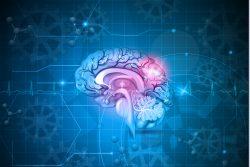 Инсульт — симптомы, лечение, профилактика