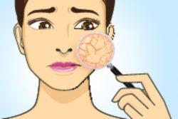 Наиболее распространенные заболевания кожи