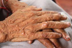 Нейрофиброматоз Реклингхаузена: симптомы, диагностика и лечение