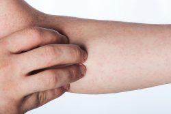 Синдром Чарга-Стросса: причины, симптомы, принципы лечения