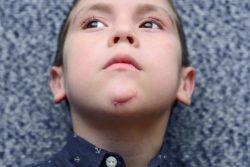 Удаление послеоперационных шрамов и рубцов на лице и теле