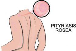 Розовый лишай — симптомы и лечение