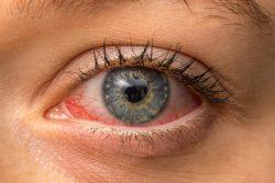 Конъюнктивит: симптомы и лечение