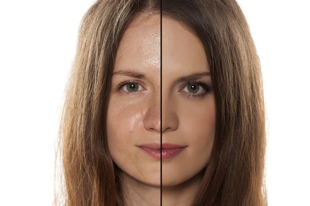 Уход за жирной кожей лица: фото до и после