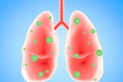 Вирусная пневмония: симптомы и лечение