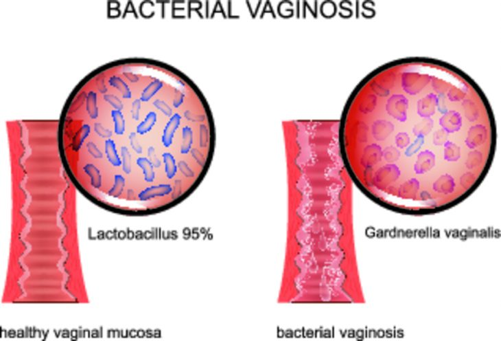 Вагинальная инфекция гарденил з