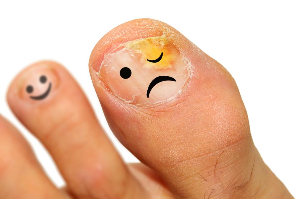 Средства для лечения ногтей в аптеке