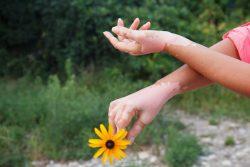 Лейкодерма: причины появления, симптомы и лечение