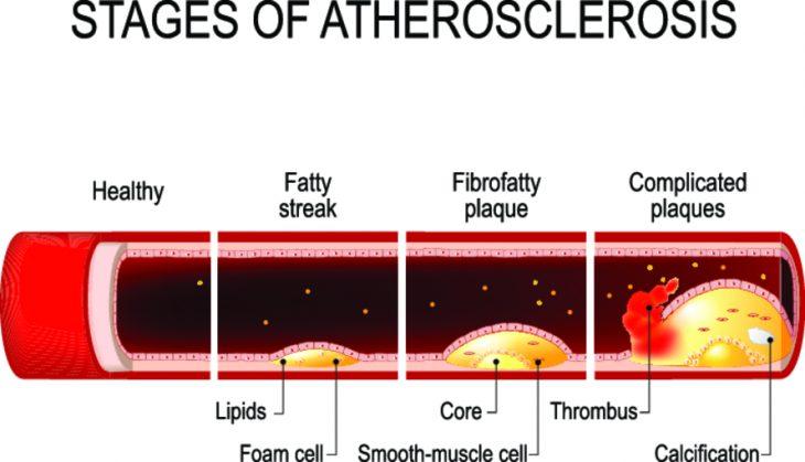 Инфаркт - симптомы, первые признаки заболевания