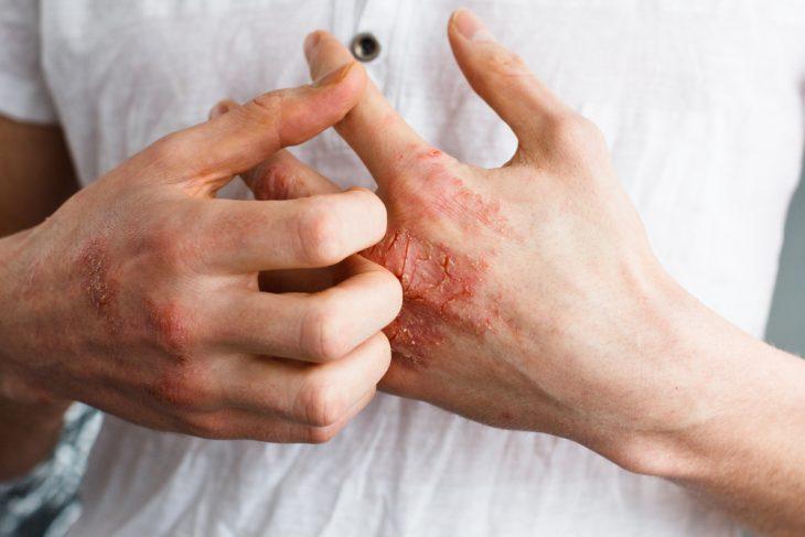 Экзема — причины возникновения, симптомы и лечение