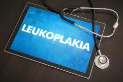 Лейкоплакия вульвы: современные способы лечения